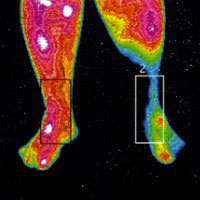 Pain Evaluation thermographic image