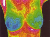 Breast Asymmetry shown by a Thermographic Image