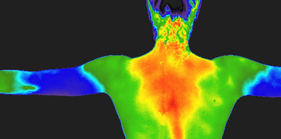 Thermography Image - Back