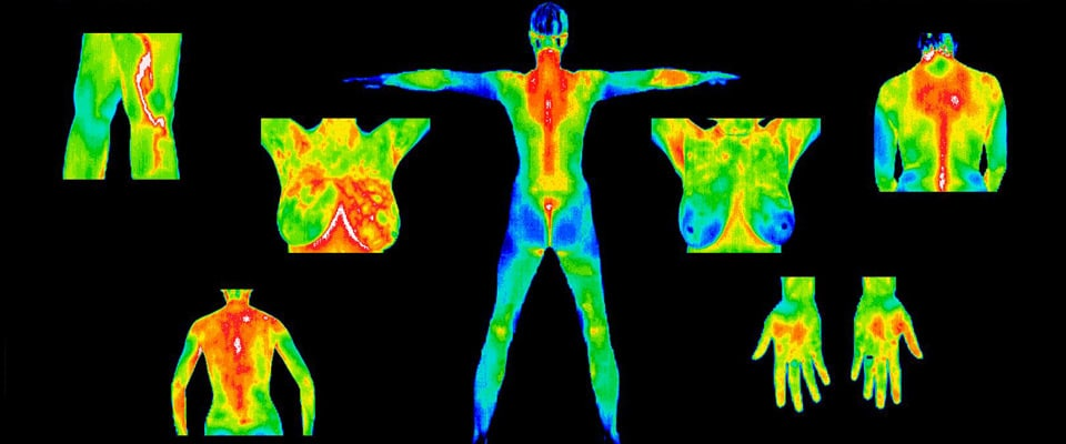 Thermography images of the body, breast, hands, back, legs