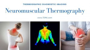 Exploring Neuromuscular Thermography